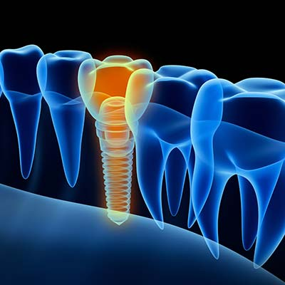Dental implants icon
