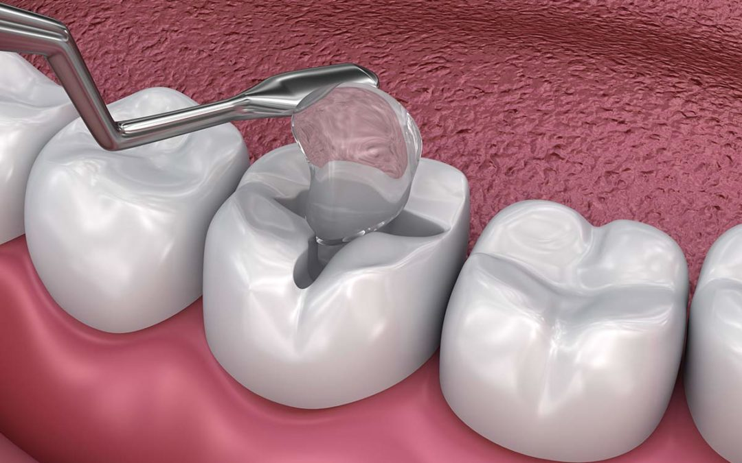 What Are Tooth Fillings? | Viewpoint Dentistry
