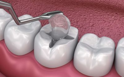 What Are Tooth Fillings?